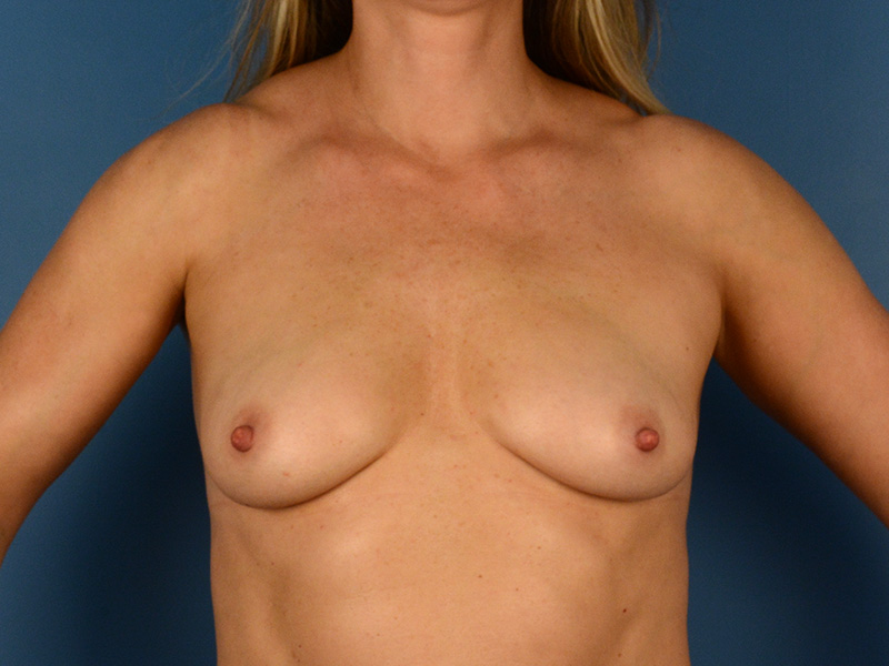 Breast Augmentation in Naples FL Before & After Photo 01