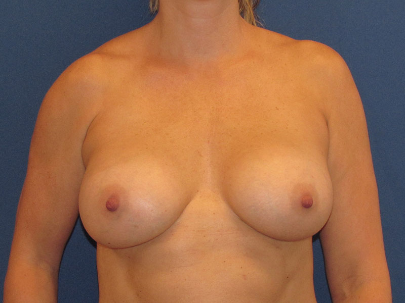 Breast Augmentation in Naples FL Before & After Photo 02