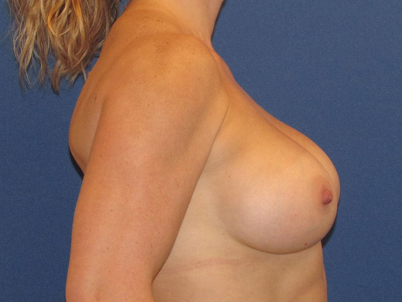 Breast Augmentation in Naples FL Before & After Photo 06