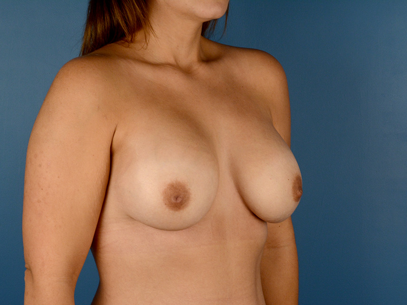 Breast Augmentation in Naples FL Before & After Photo 04