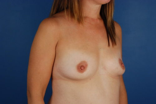 Breast Augmentation in Naples FL Before & After Photo 03
