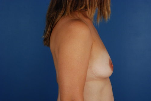 Breast Augmentation in Naples FL Before & After Photo 05