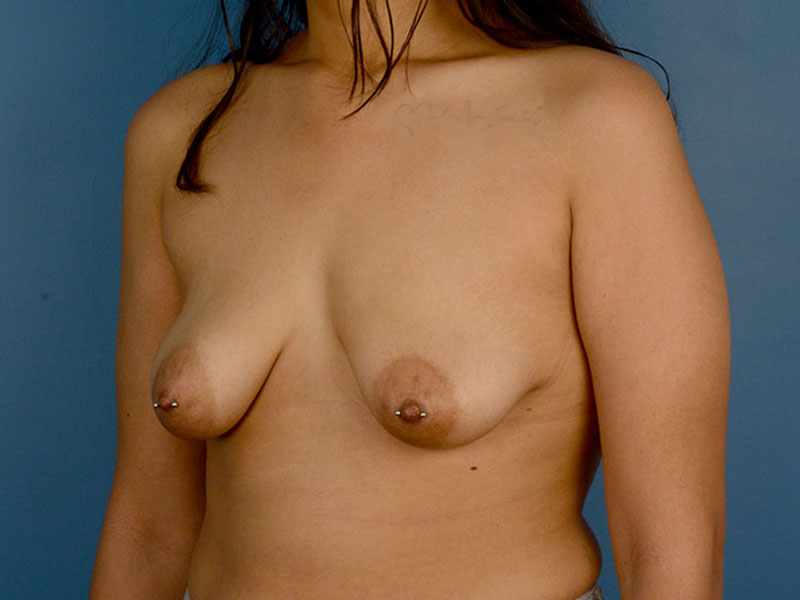 Breast Lift in Naples FL Before & After Photo 05
