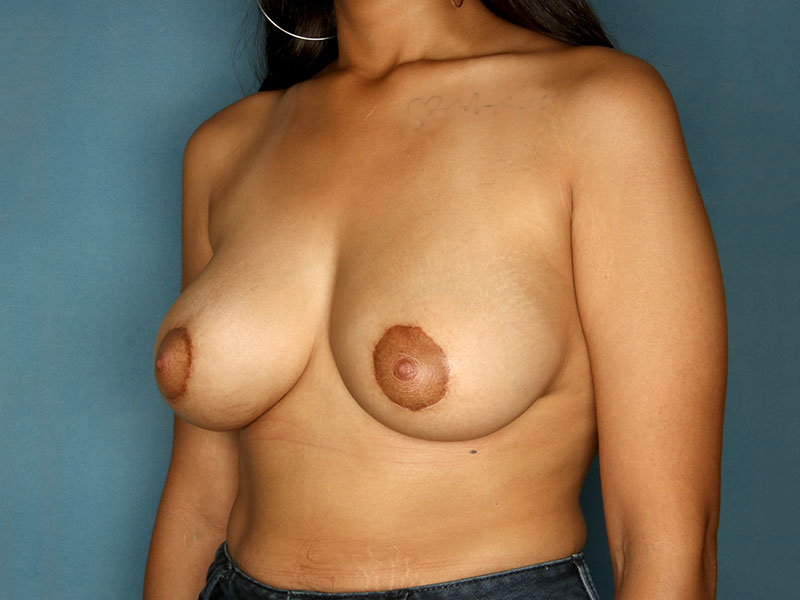 Breast Lift in Naples FL Before & After Photo 06