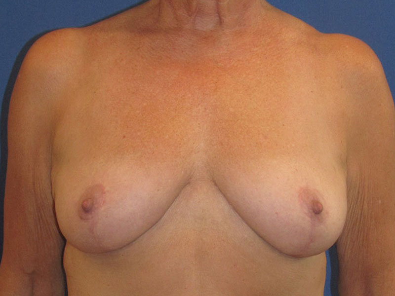 Breast Lift in Naples FL Before & After Photo 02