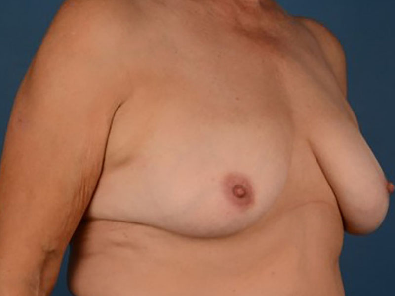 Breast Lift in Naples FL Before & After Photo 03