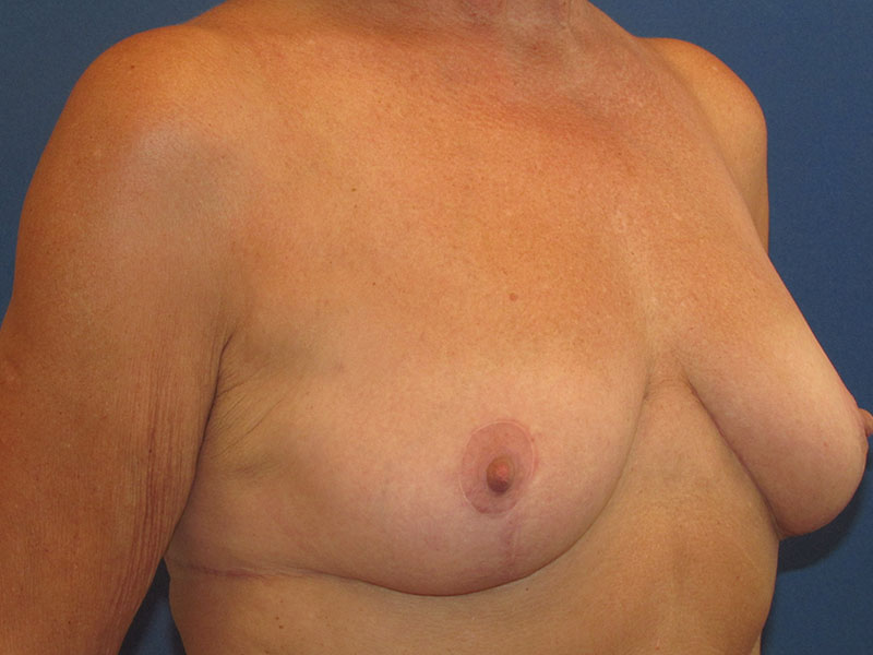 Breast Lift in Naples FL Before & After Photo 04