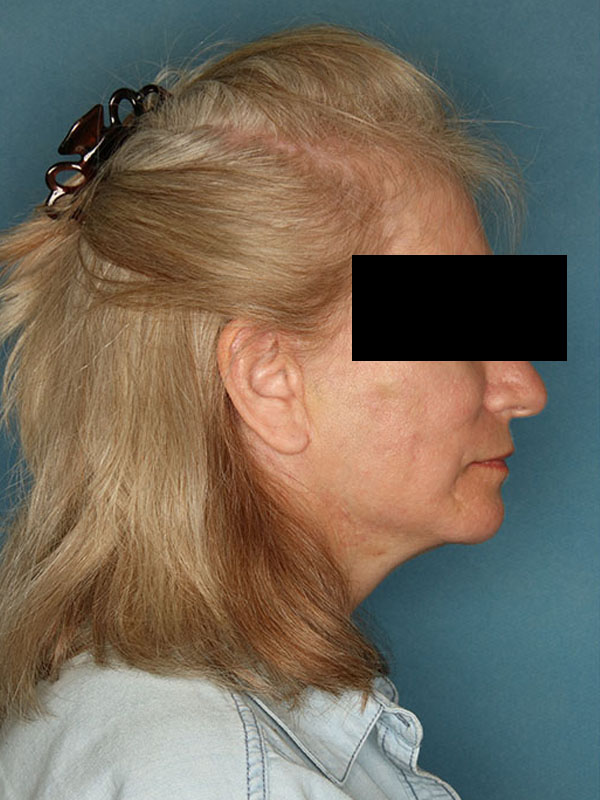 Facelift Naples FL