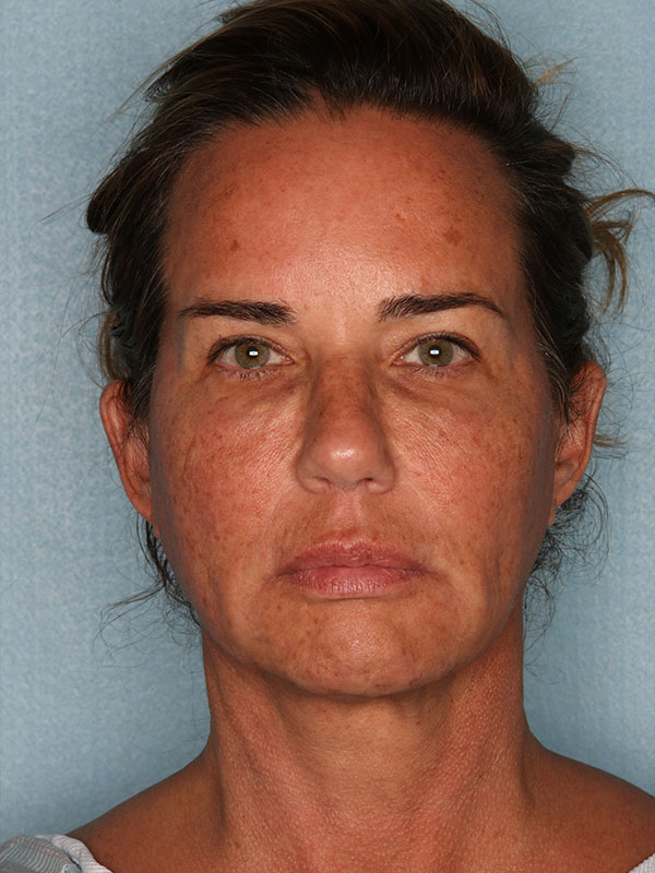 Facelift Before & After Photo - 02