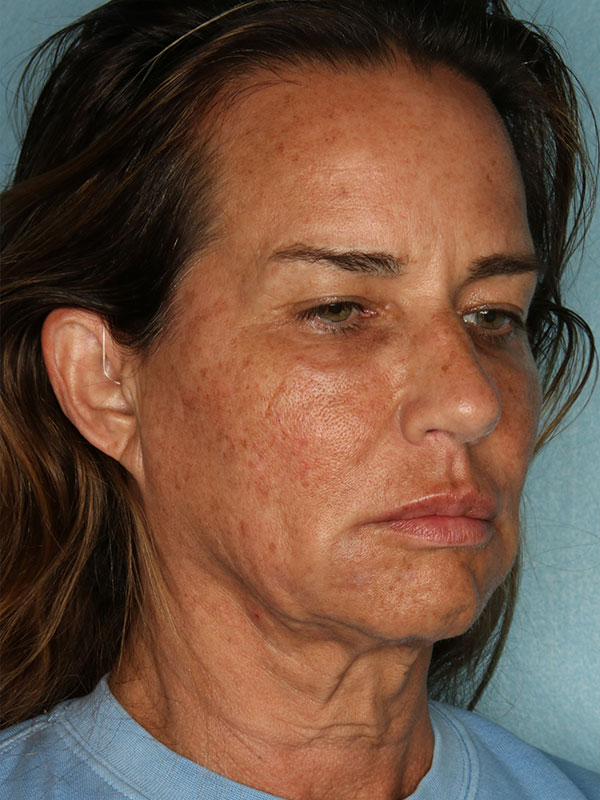 Facelift Before & After Photo - 03