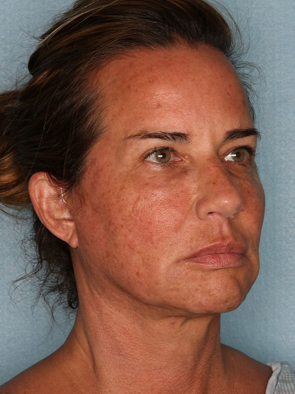 Facelift Before & After Photo - 04