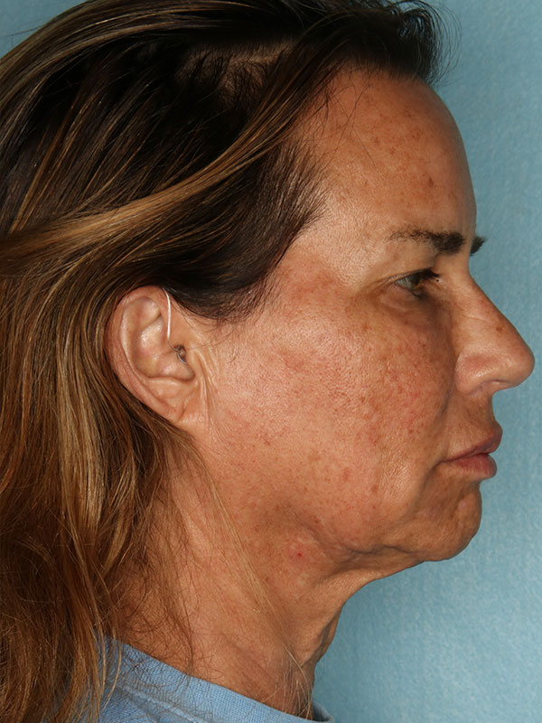 Facelift Before & After Photo - 05