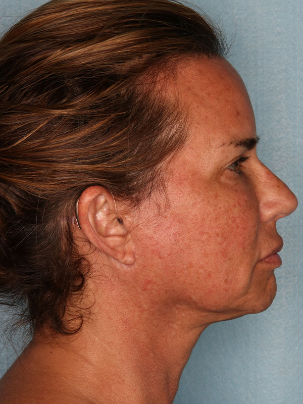 Facelift Before & After Photo - 06