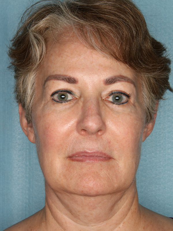 Facelift Before & After Photo 01