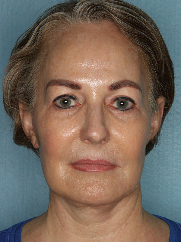 Facelift Before & After Photo 02