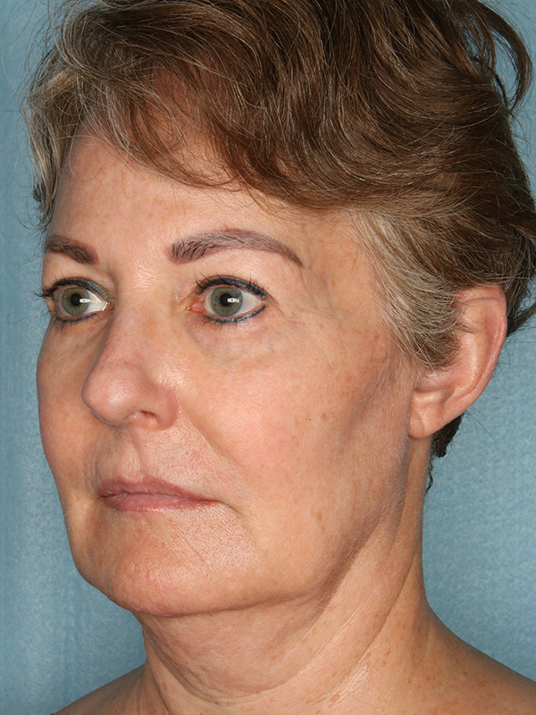 Facelift Before & After Photo 03