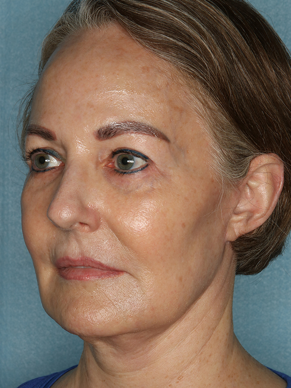 Facelift Before & After Photo 04