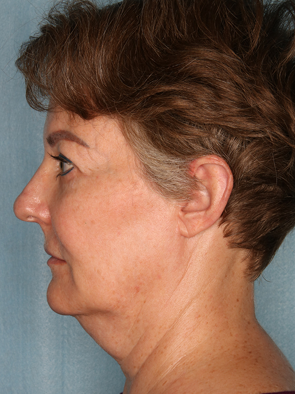 Facelift Before & After Photo 05