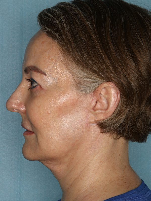 Facelift Before & After Photo 06