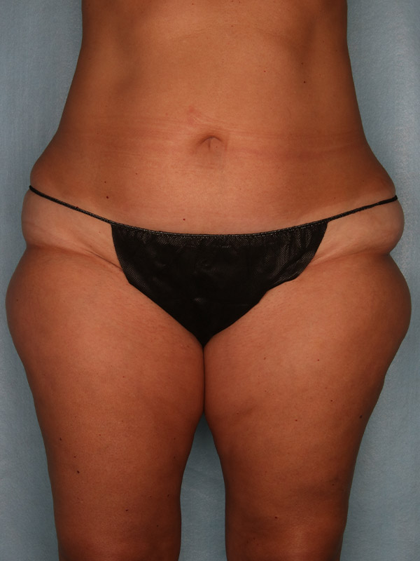 Liposuction Before & After Photo - 01