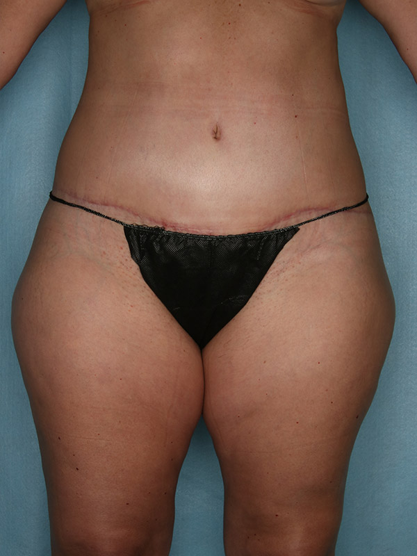 Liposuction Before & After Photo - 02