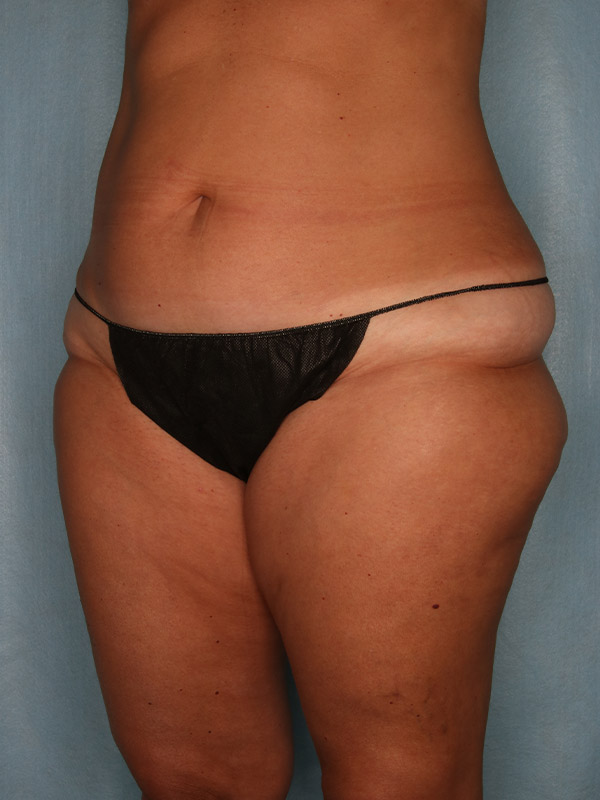 Liposuction Before & After Photo - 03