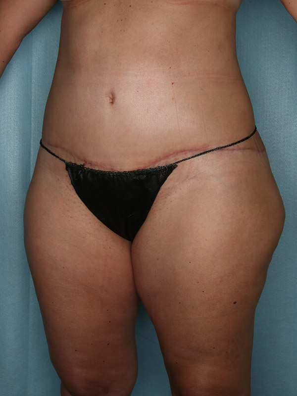 Liposuction Before & After Photo - 04