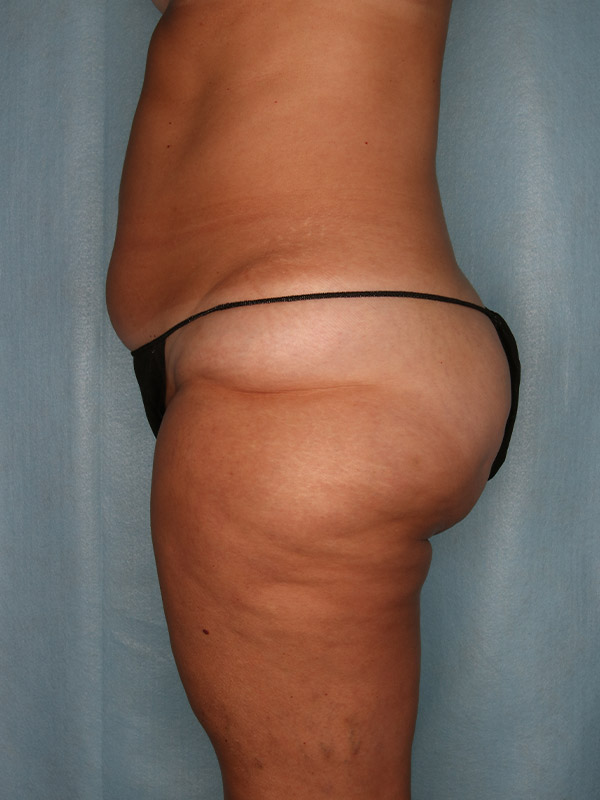 Liposuction Before & After Photo - 05