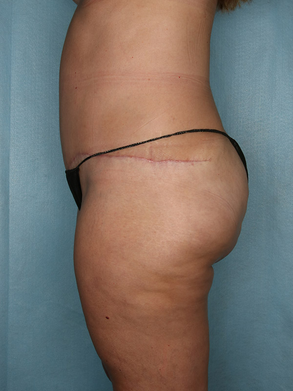 Liposuction Before & After Photo - 06