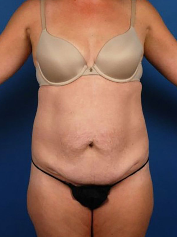 Naples FL Tummy Tuck Before & After Photo 01