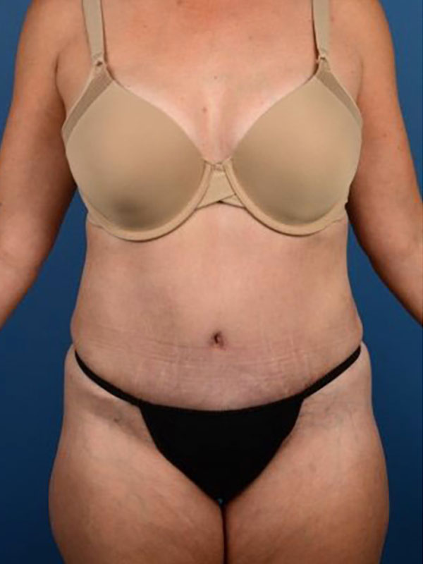 Naples FL Tummy Tuck Before & After Photo 02