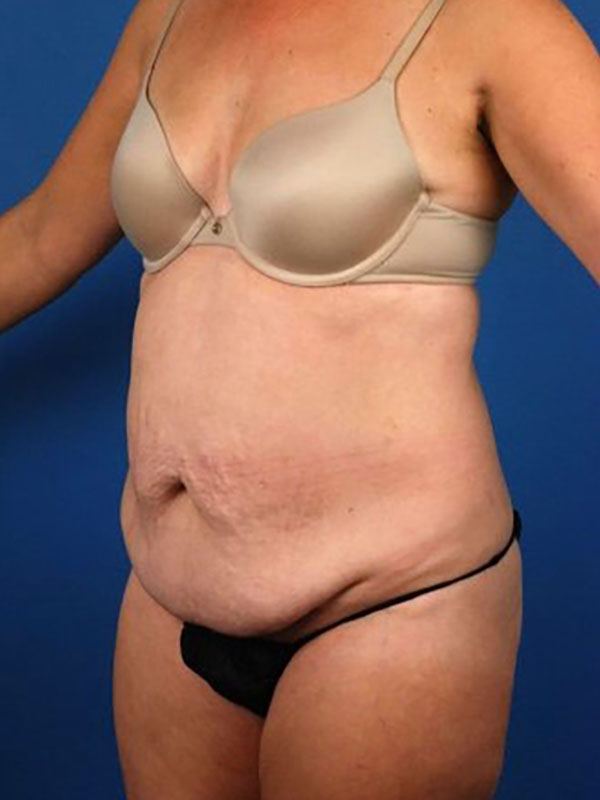 Naples FL Tummy Tuck Before & After Photo 03