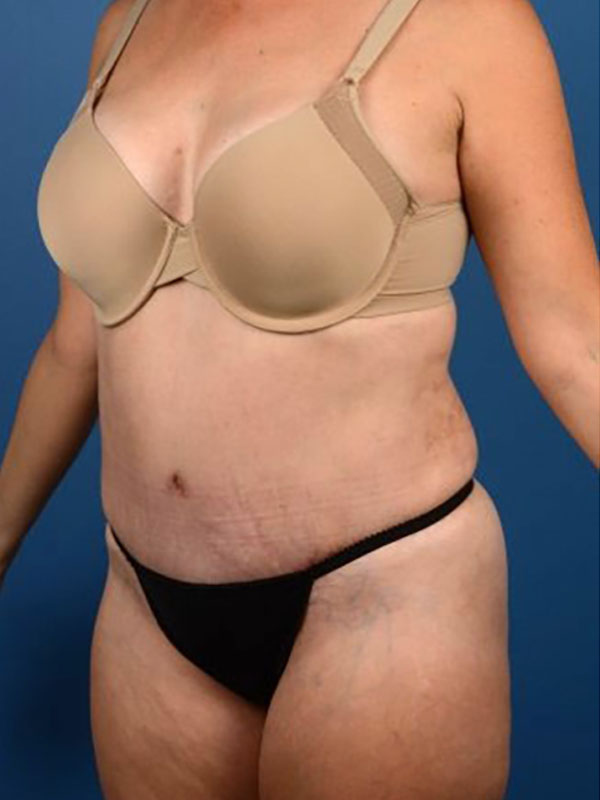 Naples FL Tummy Tuck Before & After Photo 04