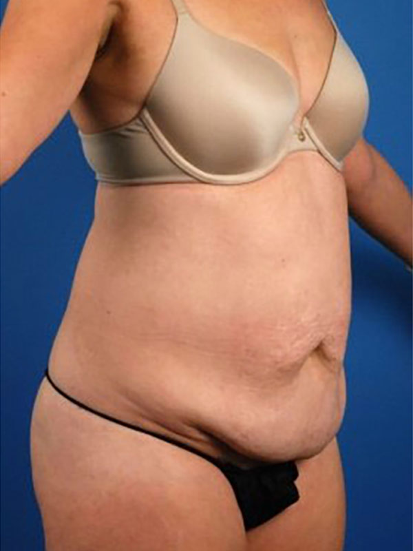 Naples FL Tummy Tuck Before & After Photo 05
