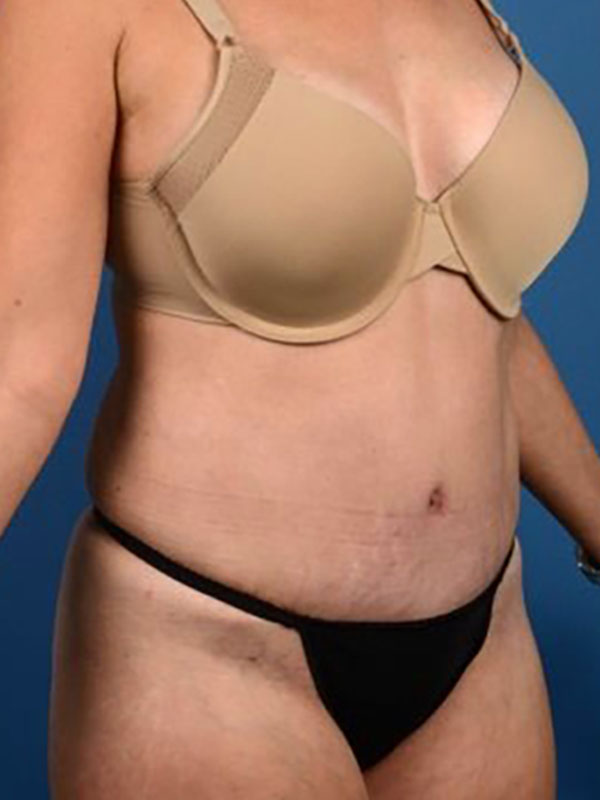 Naples FL Tummy Tuck Before & After Photo 06