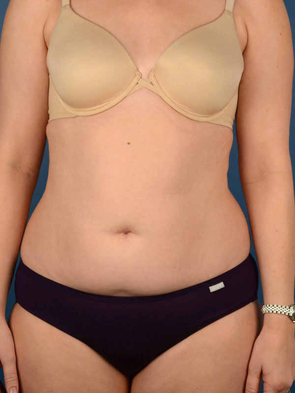 Naples FL Tummy Tuck Before & After Photo 2 - 01