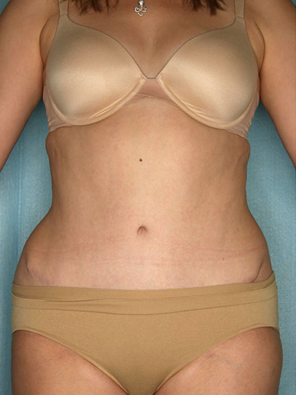 Naples FL Tummy Tuck Before & After Photo 2 - 02