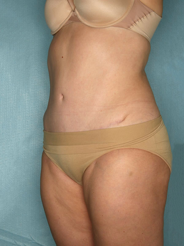 Naples FL Tummy Tuck Before & After Photo 2 - 04