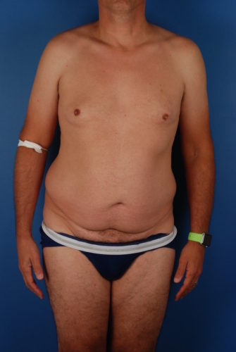 Naples FL Tummy Tuck Before & After Photo 3 - 01