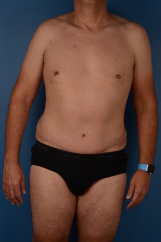 Naples FL Tummy Tuck Before & After Photo 3 - 02
