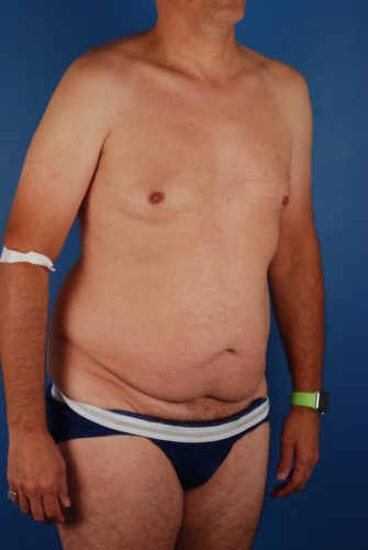 Naples FL Tummy Tuck Before & After Photo 3 - 05