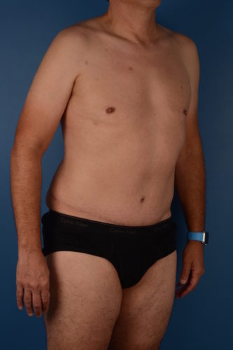 Naples FL Tummy Tuck Before & After Photo 3 - 06