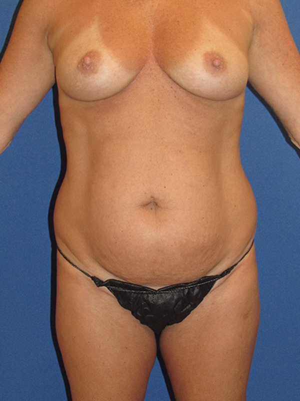 Naples FL Tummy Tuck Before & After Photo 4 - 01