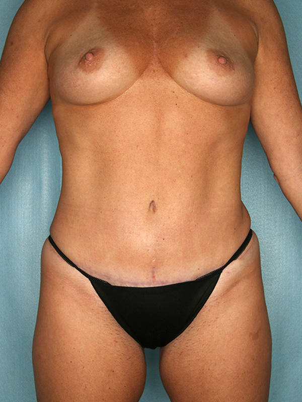 Naples FL Tummy Tuck Before & After Photo 4 - 02
