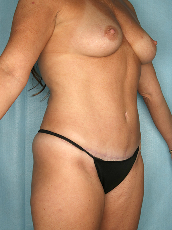 Naples FL Tummy Tuck Before & After Photo 4 - 04