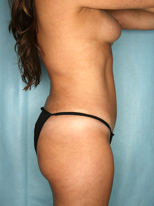 Naples FL Tummy Tuck Before & After Photo 4 - 06