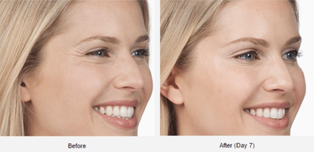 Botox Naples, FL | Ant-Aging & Deep Wrinkle Treatment